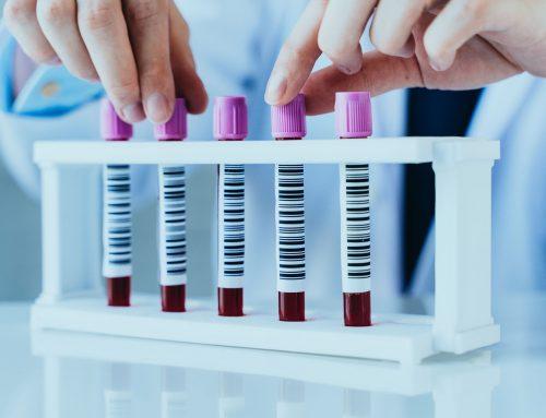 Exámenes previos a iniciar un tratamiento de fertilidad